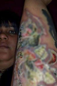 En un estudio del Centro Médico Langone de la Universidad de Nueva York, publicado recientemente en la revista Contact Dermatitis, reveló más datos sobre las infecciones en los tatuajes. Foto:vía Instagram/#infectedtatoo