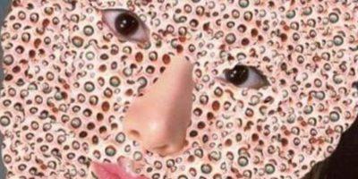 Video: Así extraen gigantesco grano de la cabeza de una mujer