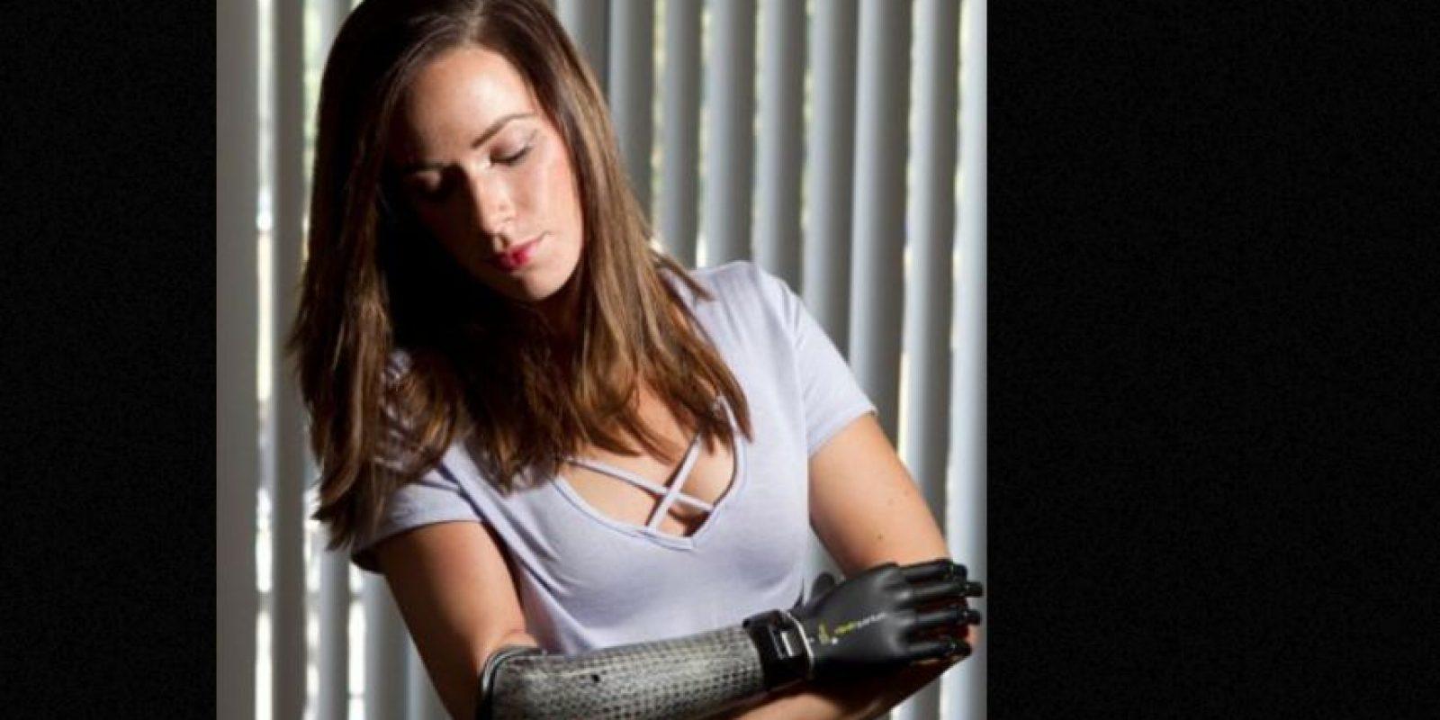 Desfiló en FTL moda y tiene una de las prótesis más avanzadas: el i-limb quantum. Foto:vía Getty Images