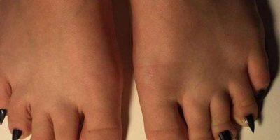 De esta manera no se infectarán sus pies. Foto:vía NoWayGirl