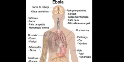 Es una enfermedad infecciosa muy grave que afecta a los seres humanos Foto:Wikicommons