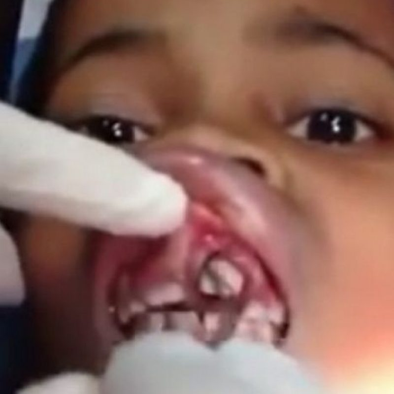 """Ana Cardoso, una niña brasileña de solo 10 años solo sentía que algo se """"movía"""" en su boca. Luego de decirle a su madre e ir a médico, encontraron varios gusanos dentro de su encía. Foto:Youtube"""