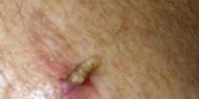 Este hombre tenía larvas en la espalda. Foto:Youtube