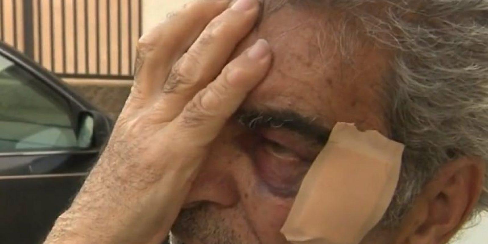 Actualmente Derrick se enfrenta a cargos de abuso de ancianos y daño corporal. Foto:CBS