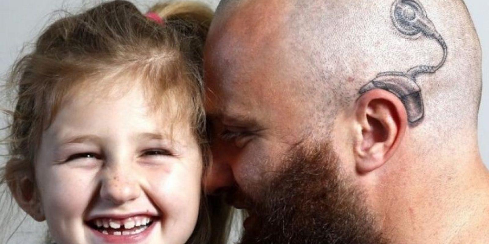 Alistair Campbell –padre de familia neozelandés– quería asegurarse de que su hija no se intimidara más por su nuevo aparato auditivo y decidió tatuarse uno en la cabeza. Foto:Vía Facebook/acebook.com/anitaalistair.campbell