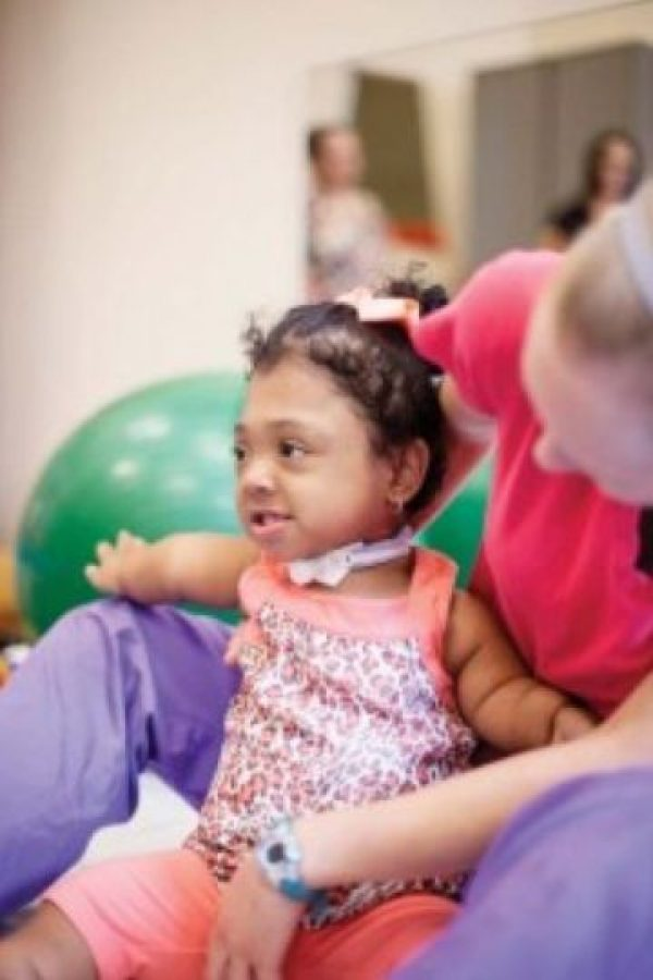 Ahora, Janelly tiene 9 años. Foto:Vía Childrenshospital.vanderbilt.org