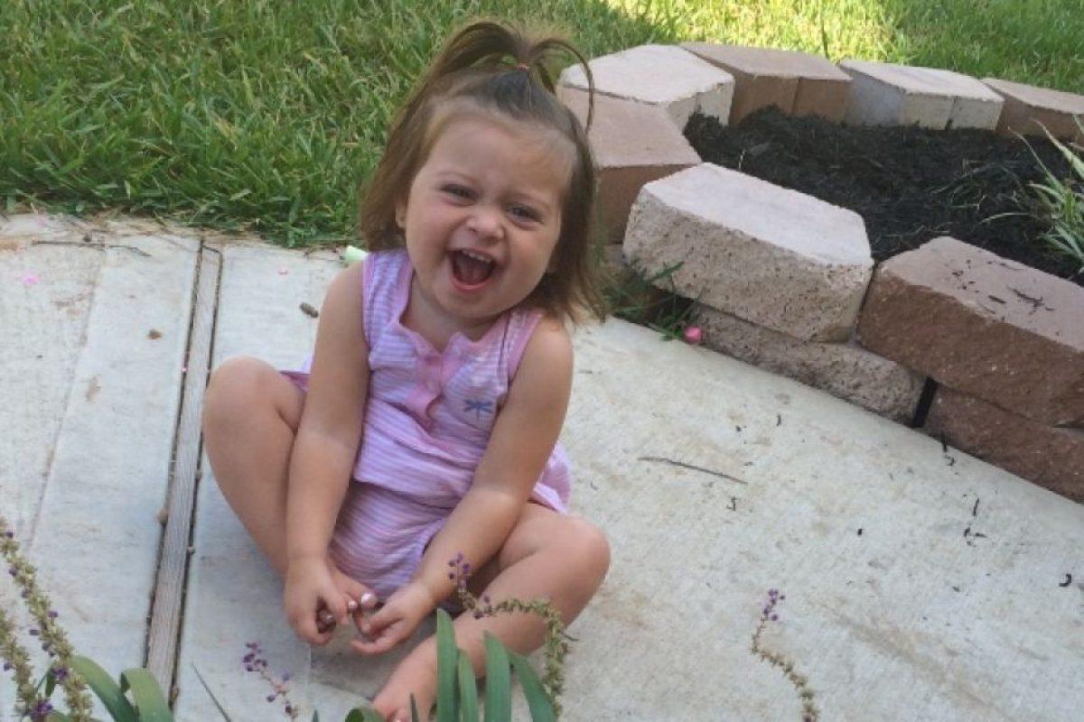 A la pequeña Golden se le retiró una parte de cráneo debido a la inflamación que le ocasiono el ataque en el cerebro. Foto:Vía gofundme.com/h367wjts
