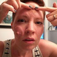 Aniela McGuinness pretende concientizar a las mujeres respecto al cáncer de mama y el proceso de reconstrucción luego de una mastectomía bilateral (extirpación de los dos senos). Foto:Vía Instagram/anielamcg