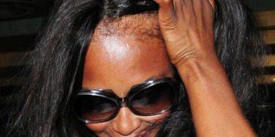 Y también el hecho de maltratar su cabellera por tanto tiempo, hicieron que se viera así. Foto:vía Getty Images