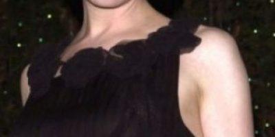 """¿Será posible? Protagonista de """"Bridget Jones"""" recupera la apariencia de su cara"""