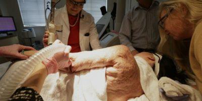 A sus 52 años comenzó un tratamiento láser que ayudara a eliminar sus cicatrices. Foto:AP