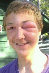 Este chico fue picado por varias abejas. Foto:Vía Reddit