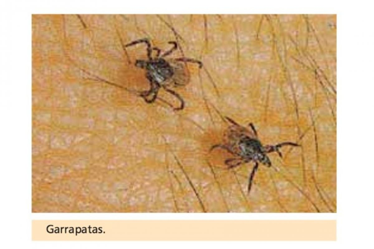 Aquí las garrapatas Foto:Vía Asociación Española de Pediatría