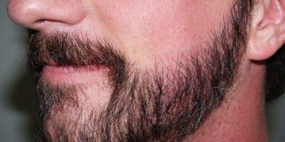 El antes y después del trasplante de pelo. Foto:DR JEFFREY EPSTEIN