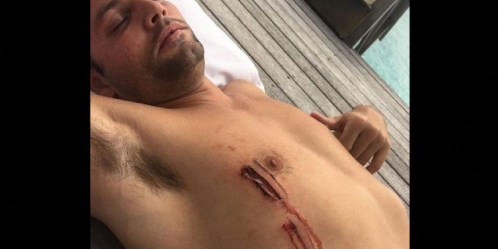 Durante un viaje con Justin Bieber el fotógrafo y director Joe Termini, sufrió una mordida de tiburón en Australia. Foto:Vía Instagram/Justin Bieber