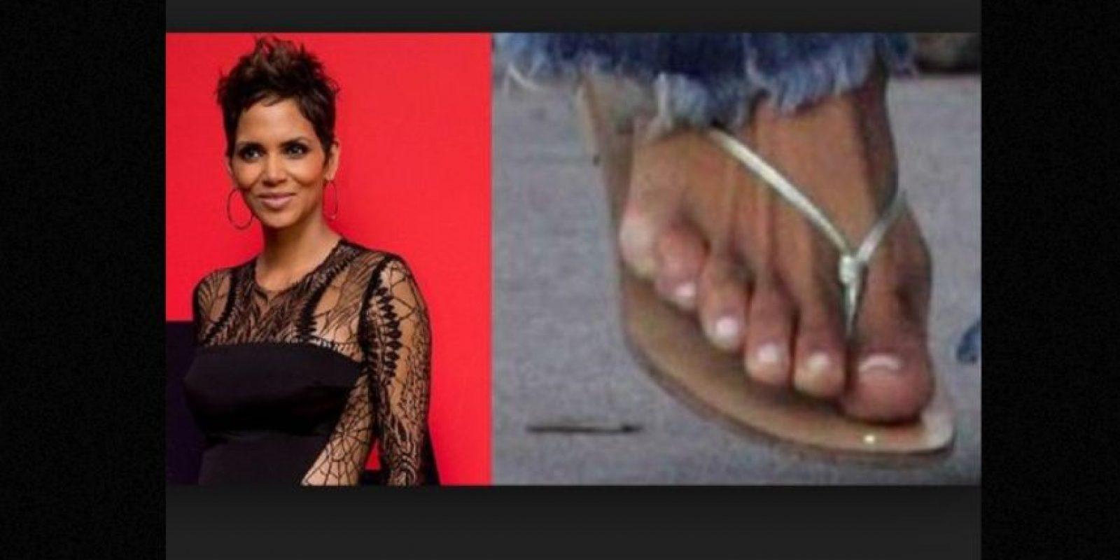 Este trastorno genético hace que un humano nazca con más dedos, ya sea en las manos o los pies. Se rumora que Berry tiene un dedo extra en el pie izquierdo. Foto:vía Getty Images