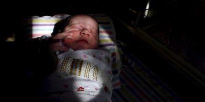 La mayoría de los casos ocurren al azar sin ninguna razón aparente. Una teoría sugiere que los síntomas de la Pentalogía de Cantrell se producen debido a una anormalidad en el desarrollo de tejido embrionario temprano en el embarazo. Foto:Getty Images