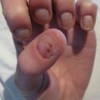 3. Fomentar la propagación de los gérmenes de las uñas y los dedos a los labios y la boca. Foto:Wikimedia