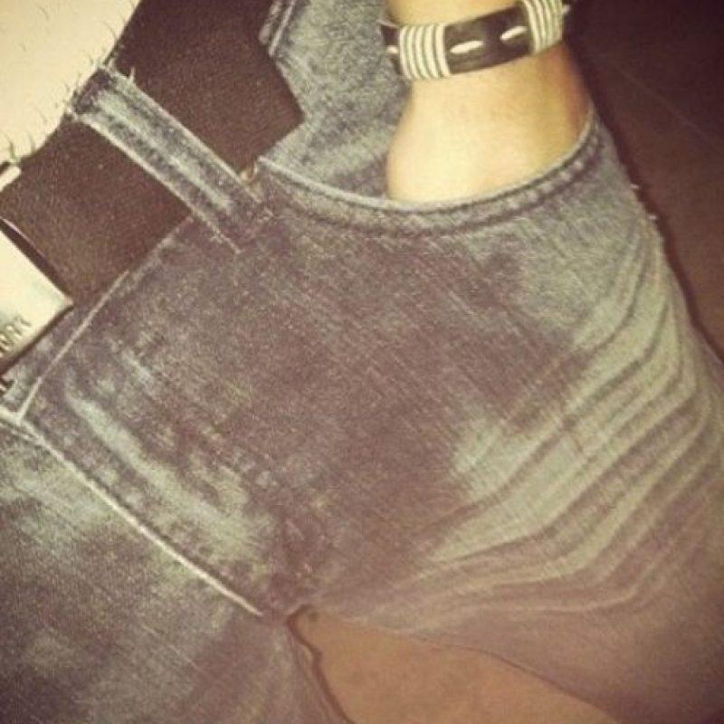 """El integrante de One Direction compartió esta imagen con la cita """"tuve un accidente"""". En cuestión de horas la publicación desapareció de Instagram. Foto:vía instagram.com/harrystyles"""