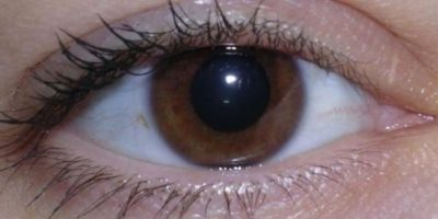 2. Bolsas debajo de los ojos Foto:Pinterest