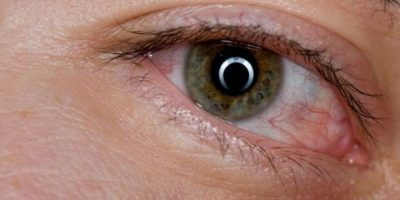 3. Derrames en los ojos (venitas rojas) Foto:Tumblr