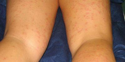 4. Algunas son alérgicas a muchos productos de depilación, tales como ceras o cremas. Foto:Wiimedia
