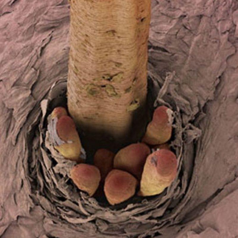 Los ácaros viven con ustedes en su piel y su pelo. Foto:vía Wikipedia