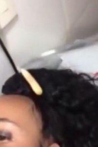 Esta era la larva que se encontraba dentro de su labio. Foto:Vía Youtube