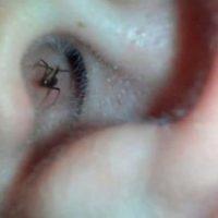 En este caso, un hombre grabó una araña que se escondía dentro de su oreja. Foto:Vía Youtube
