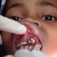 """Ana Cardoso, una niña brasileña de solo 10 años solo sentía que algo se """"movía"""" en su boca. Luego de decirle a su madre e ir al médico, encontraron varios gusanos dentro de su encía. Foto:Vía Youtube"""
