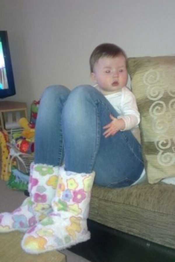 Este bebé no tiene piernas de una joven. Foto:Imgur