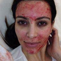 Kim Kardashian y su mascarilla de sangre. Foto:vía Instagram