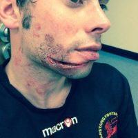 9. Gary Fawcett / Un rival le pisó el rostro y le dejó esta terrible lesión. Foto:Vía facebook.com/GarstangFootballClub