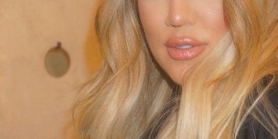 Aseguran que Khloé Kardashian contrajo una fuerte infección tras cuidar a Lamar Odom