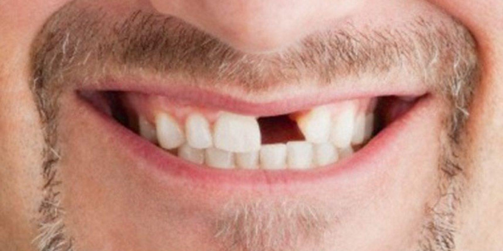 14 dentaduras peores que el sueño de perder los dientes Foto:Pinterest