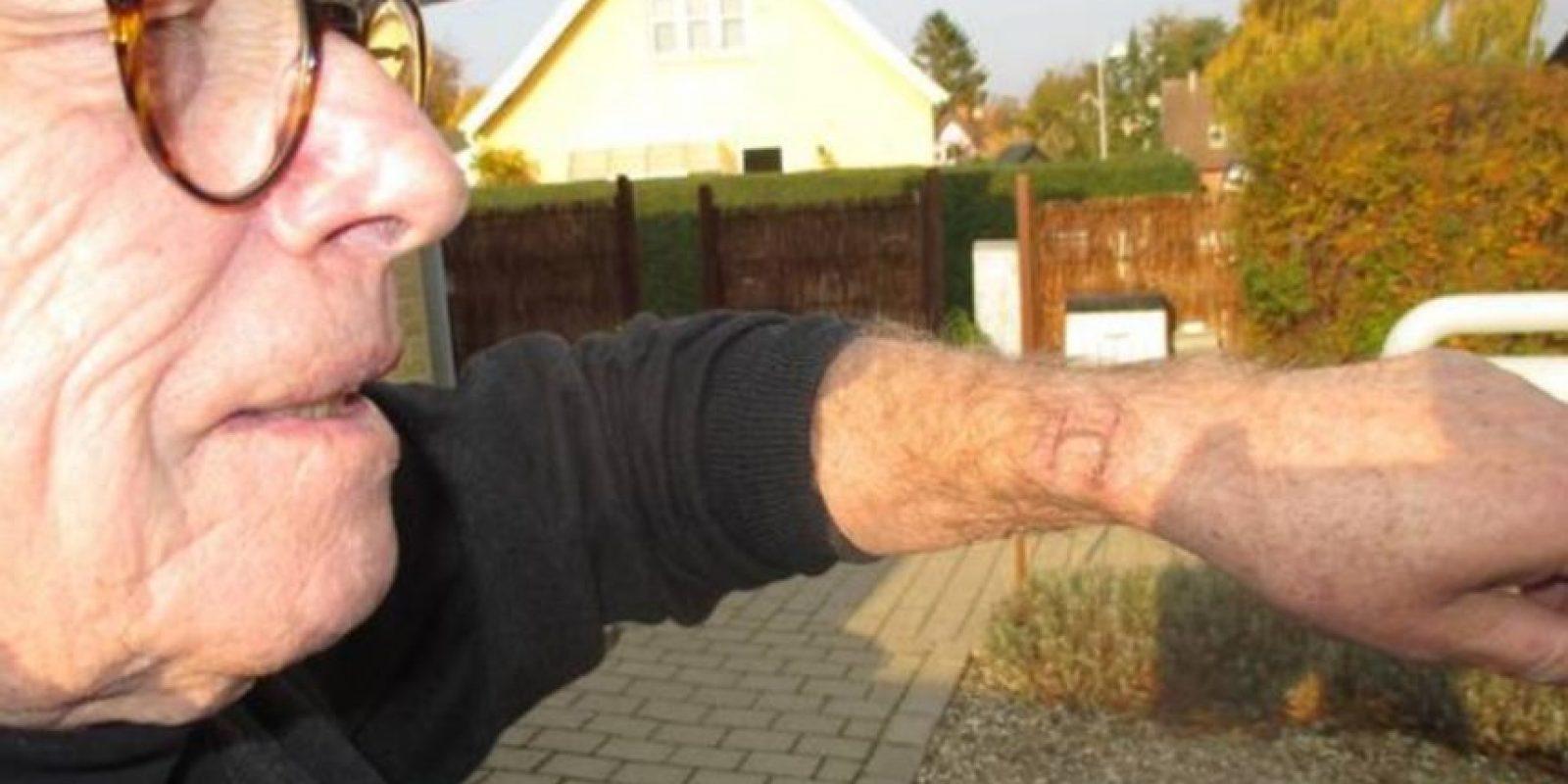 Jørgen Mouritzen dice que su Apple Watch le causó severas quemaduras. Foto:vía ekstrabladet.dk