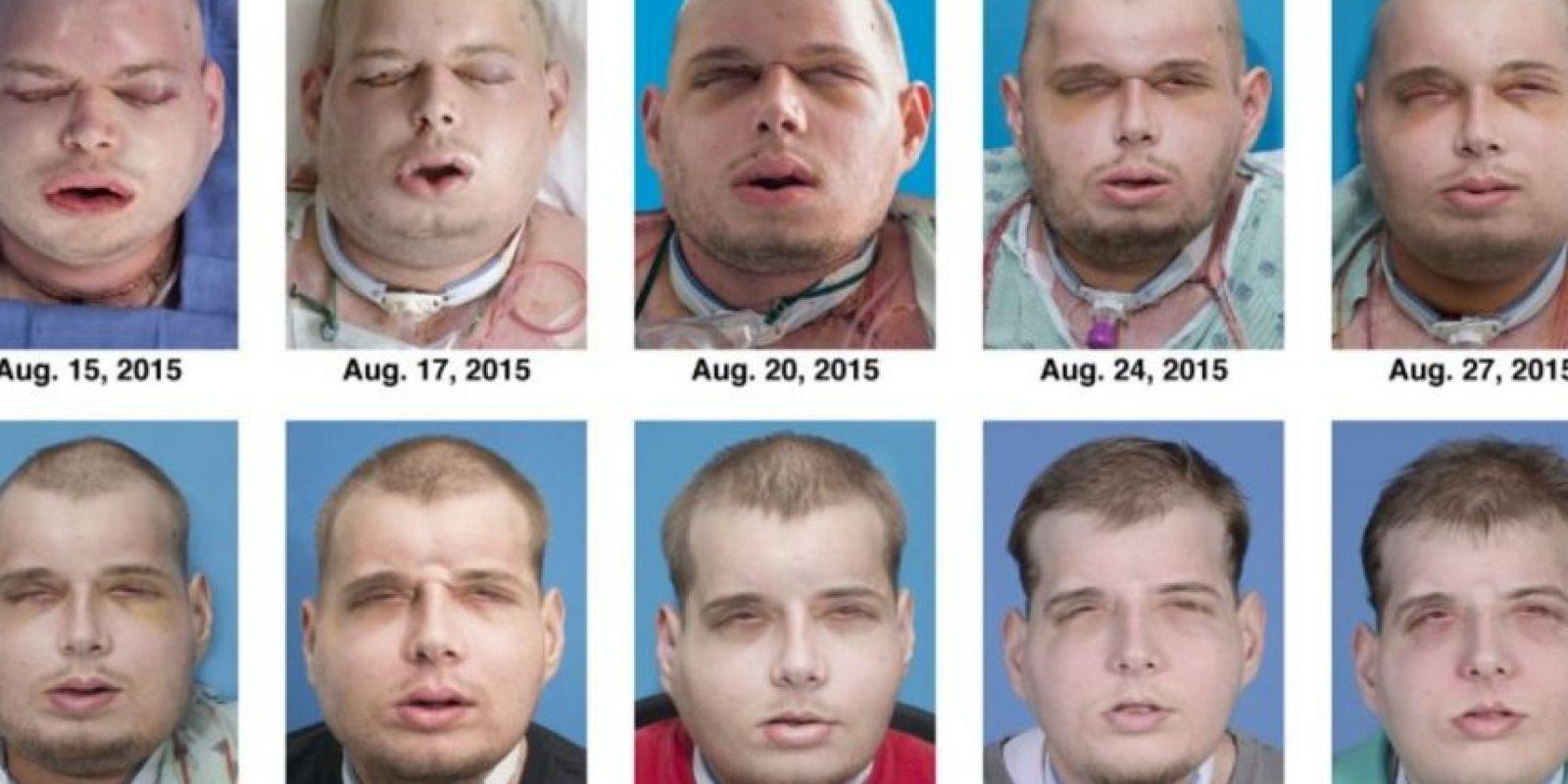 Cirujanos de Estados Unidos realizaron el transplante de rostro más extenso del mundo, en el que se incluyeron cuero cabelludo, orejas y párpados. Foto:AFP