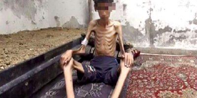 El hambre y la desnutrición son de las consecuencias más silenciadas de la guerra en Siria. Foto:AP
