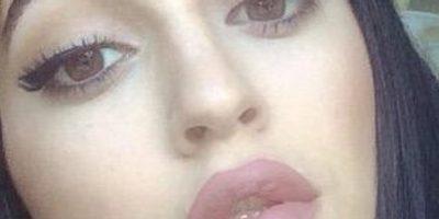 Fotos: Se rellena los labios como Kylie Jenner y se deforma la cara
