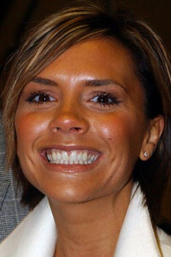 Acá, en 2007, cuando David estaba en Los Ángeles. Adoptó toda la estética de nuevo rico y se arregló los dientes. Foto:vía Getty Images