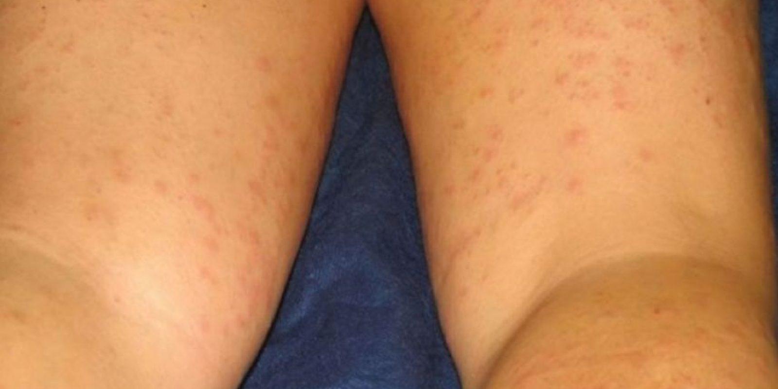 Esta chica resultó alérgica a un componente de su crema para depilar. Foto:Vía Instagram/#DepilacionFail