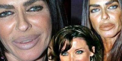 La socialité italiana Michaela Romanini terminó así luego de múltiples cirugías plásticas en el rostro. Foto:Oddee