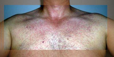 Ejemplos de erupciones en la piel, uno de los síntomas del virus zinka Foto:Wikimedia