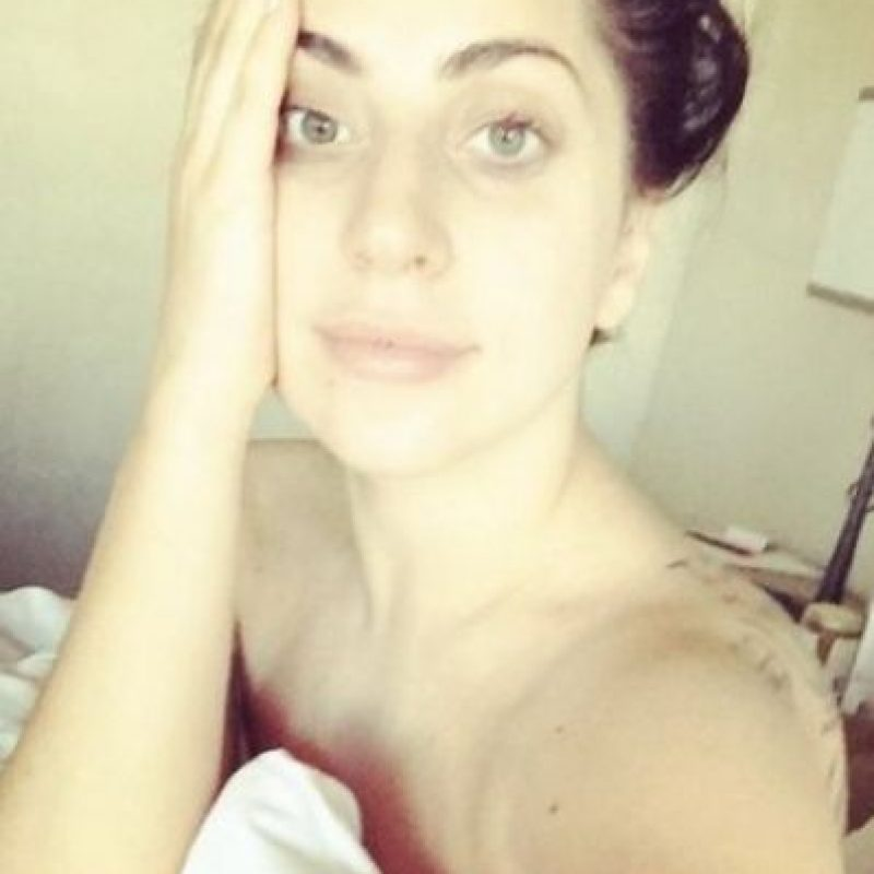 Lady Gaga confesó que cada mañana utiliza las cintas de lifting para lucir un rostro radiante Foto:vía instagram.com/ladygaga