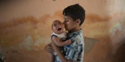 La aparición de casos de recién nacidos con microcefalia alerto aún más al país. Foto:AP
