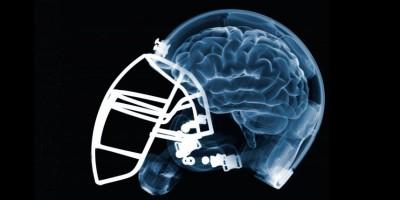 Football . Se elevaron en un 32 % las conmociones cerebrales en la NFL