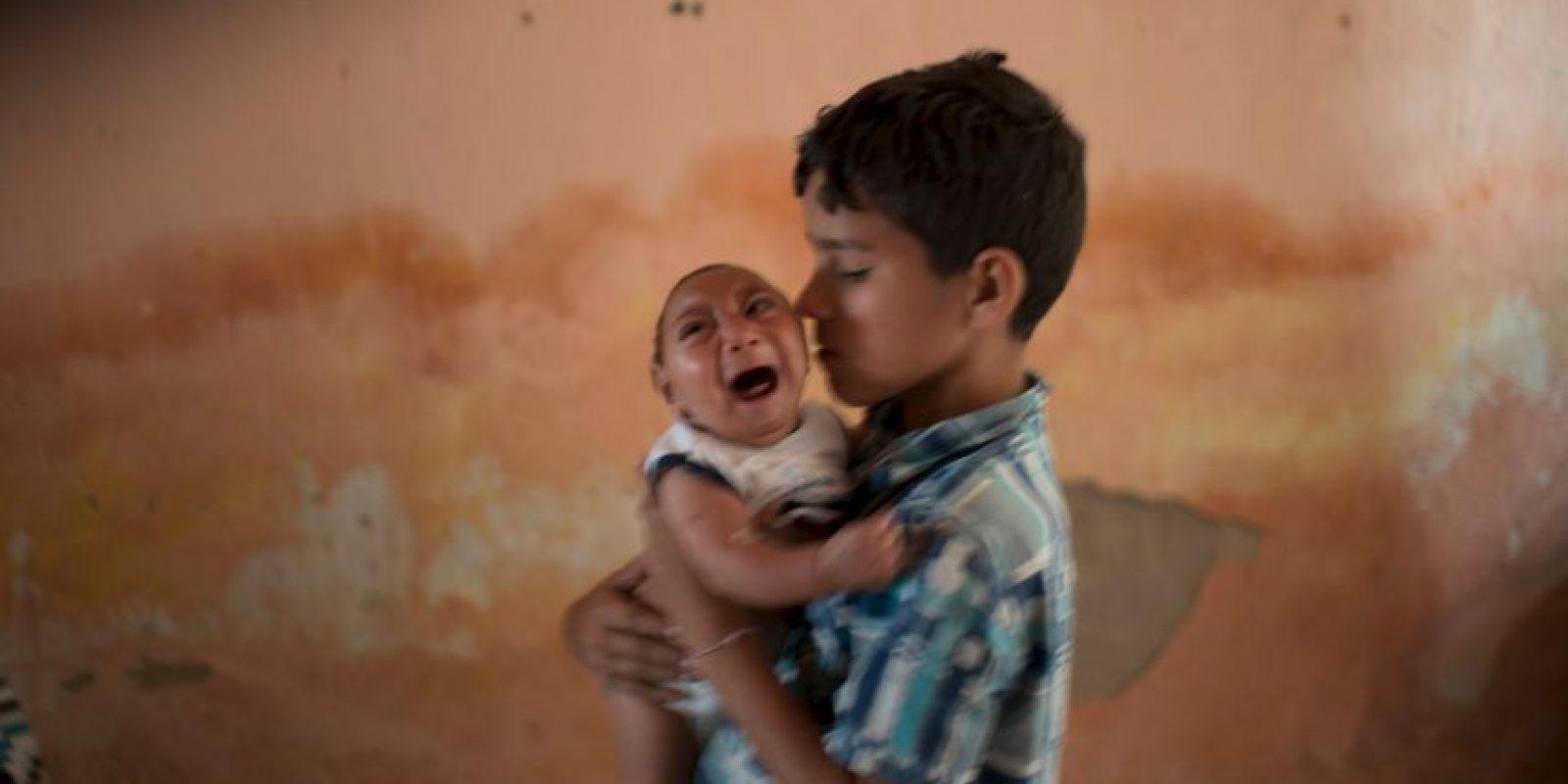 6. ¿Se puede prevenir? Foto:vía AFP