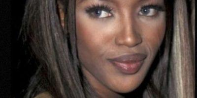 Naomi Campbell: De las pasarelas a usar bastón para caminar