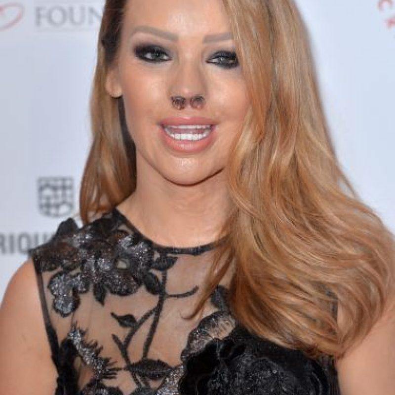 Katie Piper, presentadora de televisión y exmodelo que fue atacada con ácidoen 2008. Foto:Getty