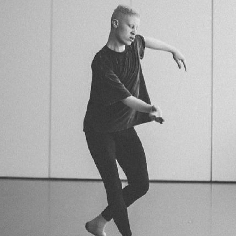 En su adolescencia fue discriminado por ser albino. Foto:Vía Instagram/@shaundross